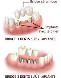 Illustration d'implants dentaires.
