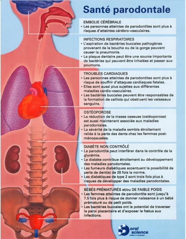 Image explicative sur la santé parondontale.