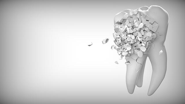 Image d'une dent qui s'effrite