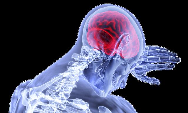 Image en transparence d'un cerveau après un accident vasculaire cérébral.