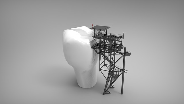 Image d'une dent en travaux pour évoquer le cas des amalgames au mercure en dentisterie.
