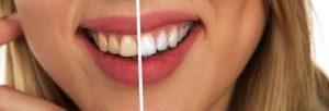 Votre cabinet dentaire d'Antibes combat les dyschromies dentaire.