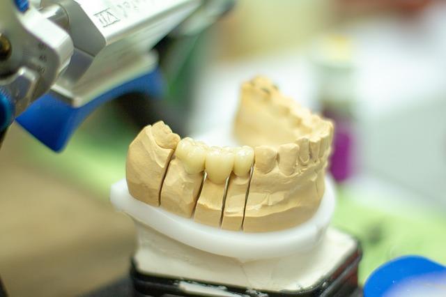 Un moulage de dents pour fabriquer une prothèse dentaire.