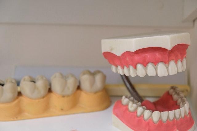 Reconstitution de dents.